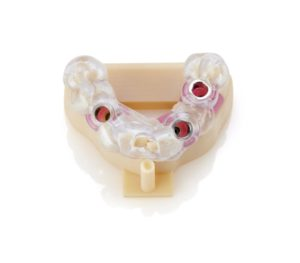 Dental 3D Printing Implant Model with Gingival Mask and Surgical Guide